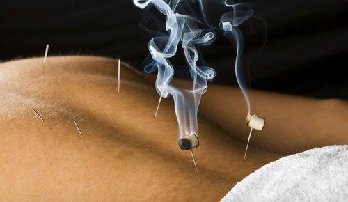 Moxibustion Therapie mit Moxa-Kraut