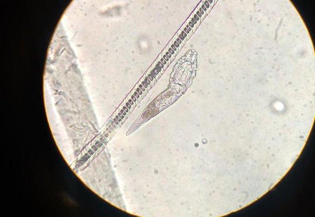 Unsichtbare Eindringlinge - Parasiten im Körper