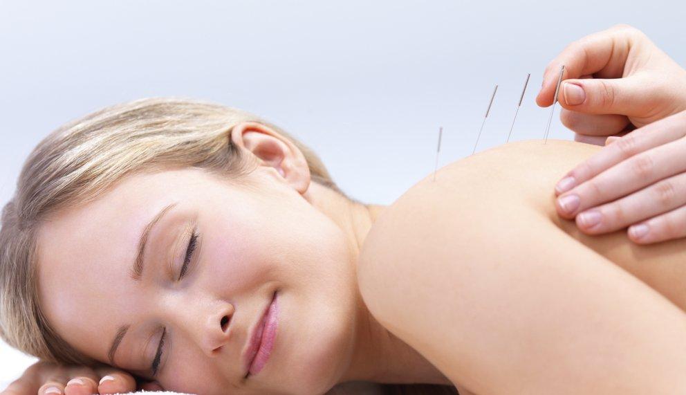 Sanft werden Akupunkturnadeln bei einer Patientin gesetzt