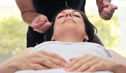 Narbenentstörung mit Akupunktur